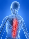 Back Pain and Excess Weight