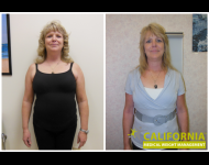 Tammy S. Lost 25 lbs*